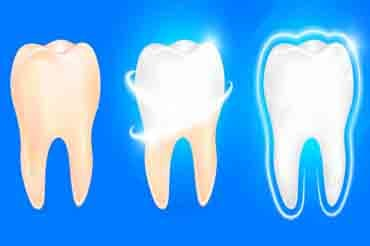 dentists, glebe, sydney, dental care, dentist, dental centre, dental, cosmetic dentist, cosmetic dentistry, Dental Care - Glebe, Sydney