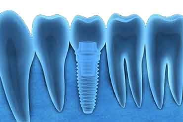 Dental Implants Sydney